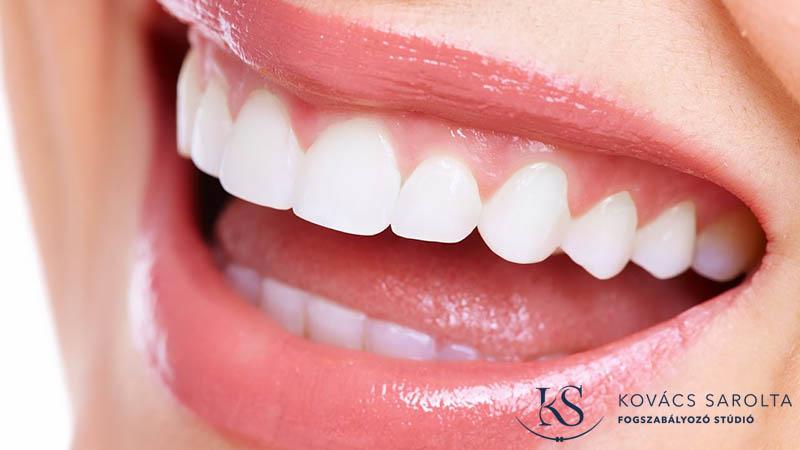 felnőttkori fogszabályozás időtartama