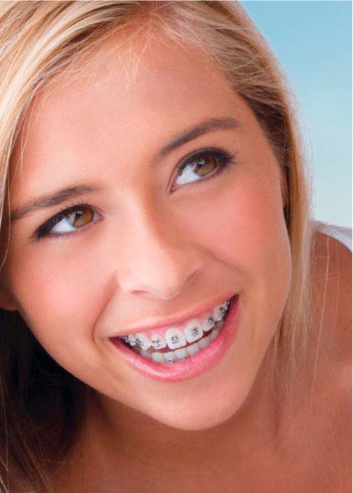 ragasztott fogszabályozó