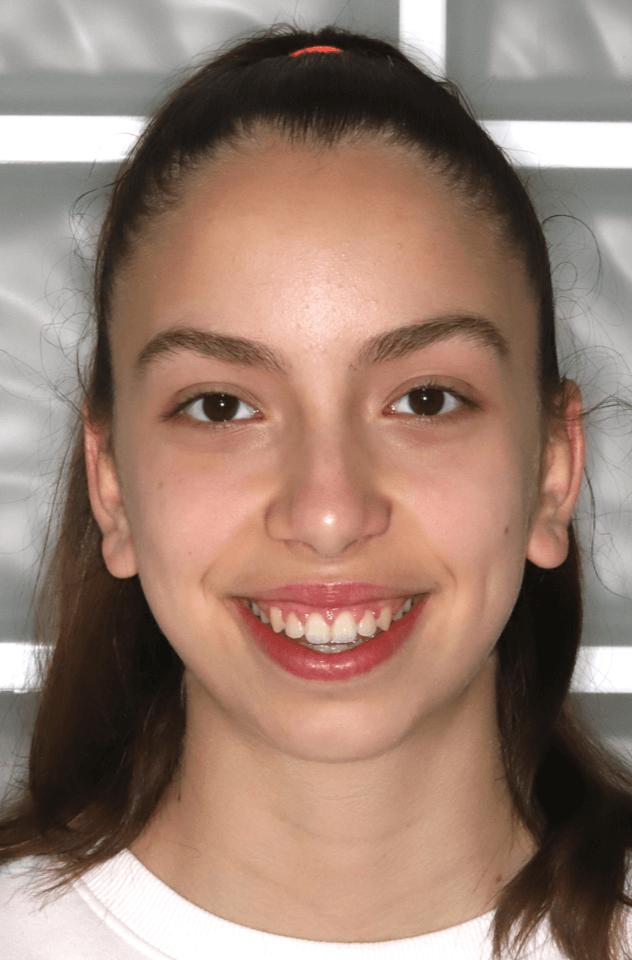 esztétikus fogszabályozás